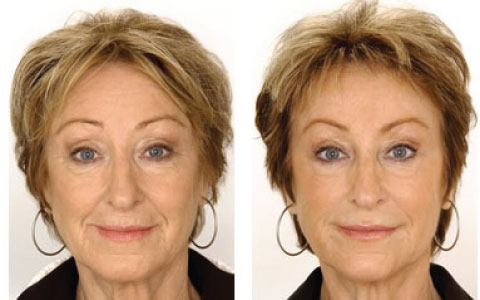 images/samples/480x300/480x300_dermal_filler.jpg
