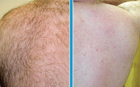images/samples/480x300/480x300_hair_removal_1.jpg